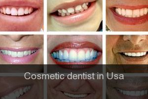 Cosmetic dentist in Usa