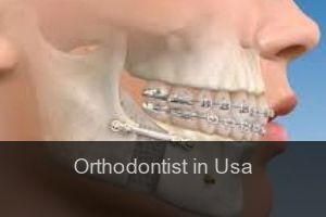 Orthodontist in Usa